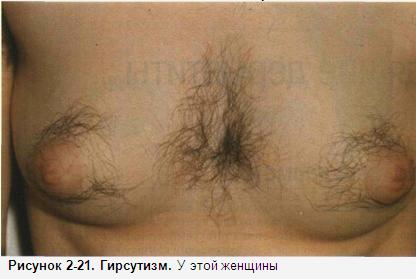 Вокруг соска растут волосы