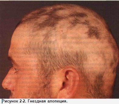 Маски для роста волос с сухими дрожжами