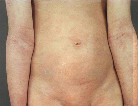 Диффузный нейродермит фото у детей
