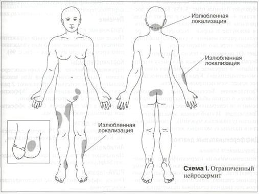 Псориаз на голове лечение антибиотиками