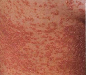 Распространенный псориаз - виды, лечение, эритродермия.