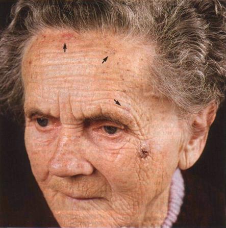 Le meilleur le moyen contre les acnés