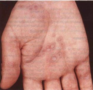 фото полиморфная сыпь