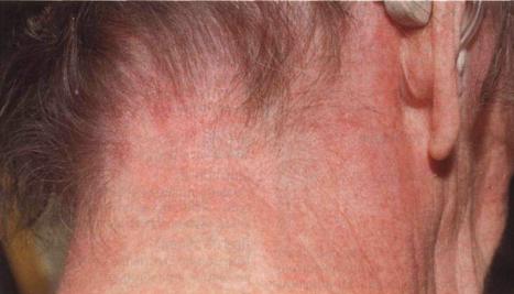 106Сыпь на лице шее и голове ребенка
