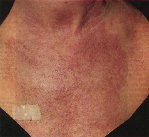 """,""dermatology.my1.ru"