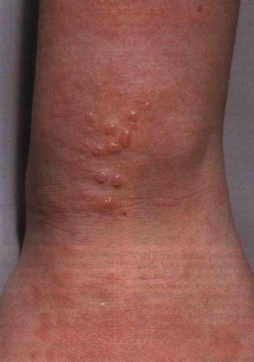 Трещина в ребре лечение.  Описание: красные пятна на теле не чешутся от простуды фото.