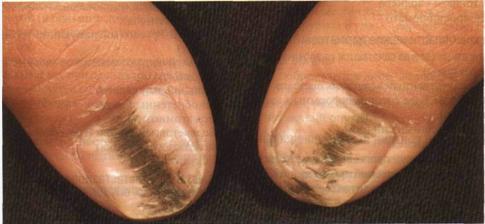 Oнихомикозы грибковые инфекции ногтей