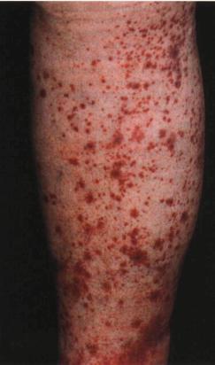 Анализ крови на васкулит Справка от фтизиатра Южнобутовская улица