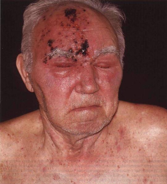 Воспаление лицевого нерва неврит лечение в домашних условиях