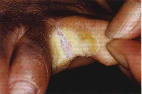 Косточка на большом пальце ноги психосоматика