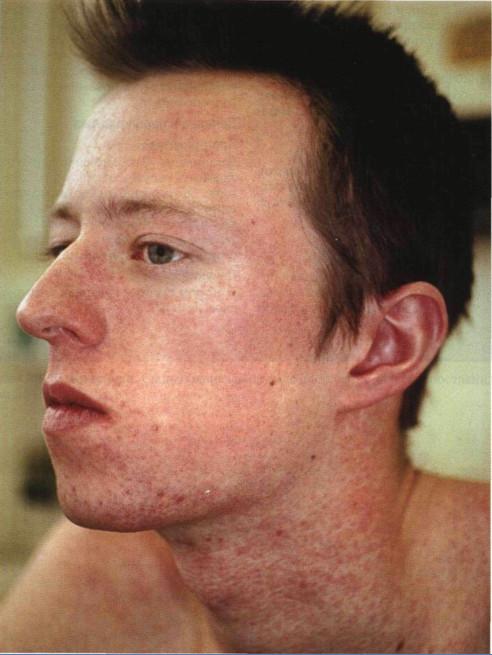 Сыпь Пятнисто-Папулярная фото