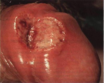 язва на члене при первичном сифилисе