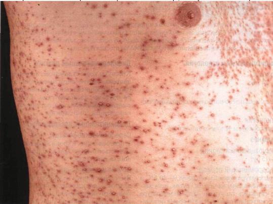 Сыпь после вакцинации