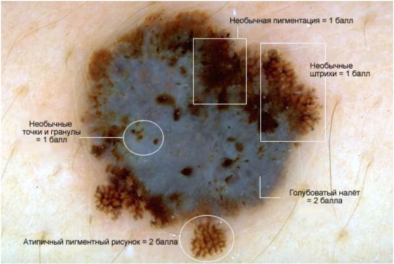 Изображение меланомы в дерматоскопе