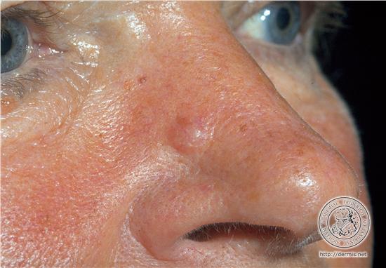 Basalioma naso - ricostruzione naso
